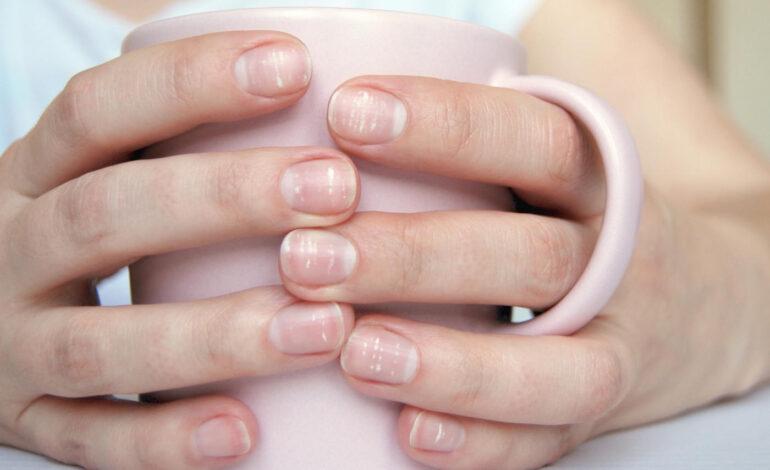 Ai pete albe pe unghii? Iată care sunt cauzele